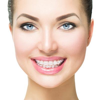 advanced braces